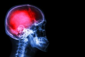 Study on MDMA for Traumatic Brain Injury Boosted By $1.5M Donation